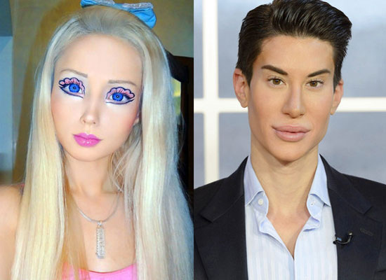Ken-Doll-and-Barby-Doll-Plastic-Surgery